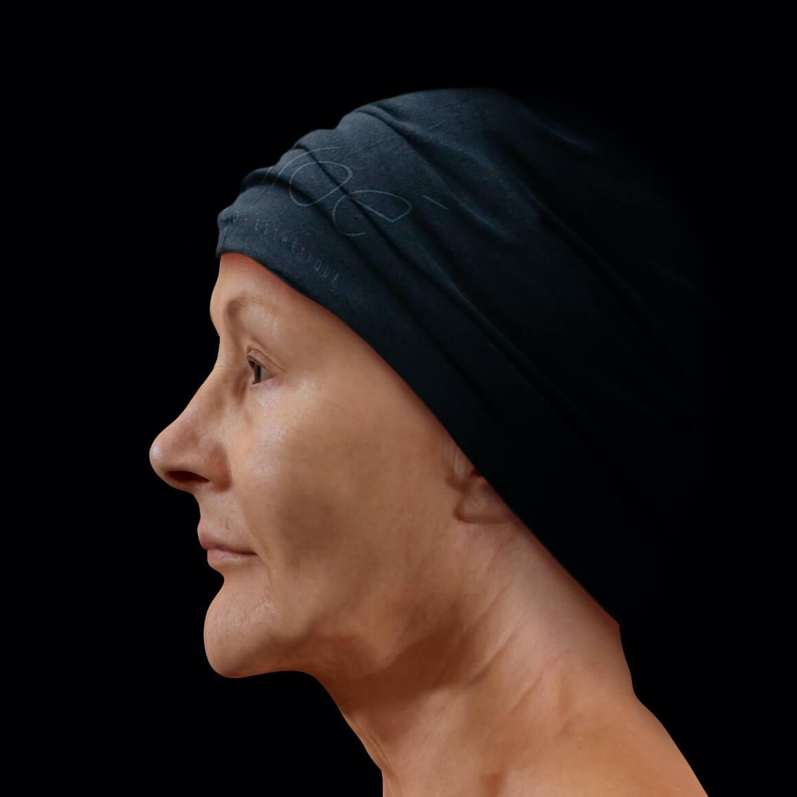 Patiente de la Clinique Chloé de côté après des traitements de photorajeunissement IPL contre les taches pigmentaires