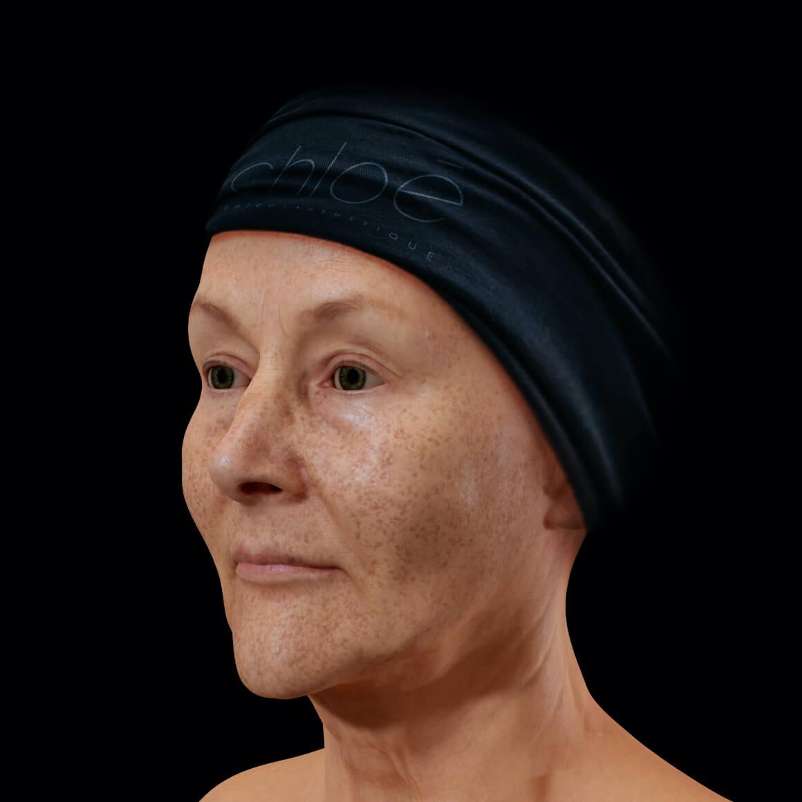 Patiente de la Clinique Chloé positionnée en angle démontrant des taches pigmentaires sur le visage entier