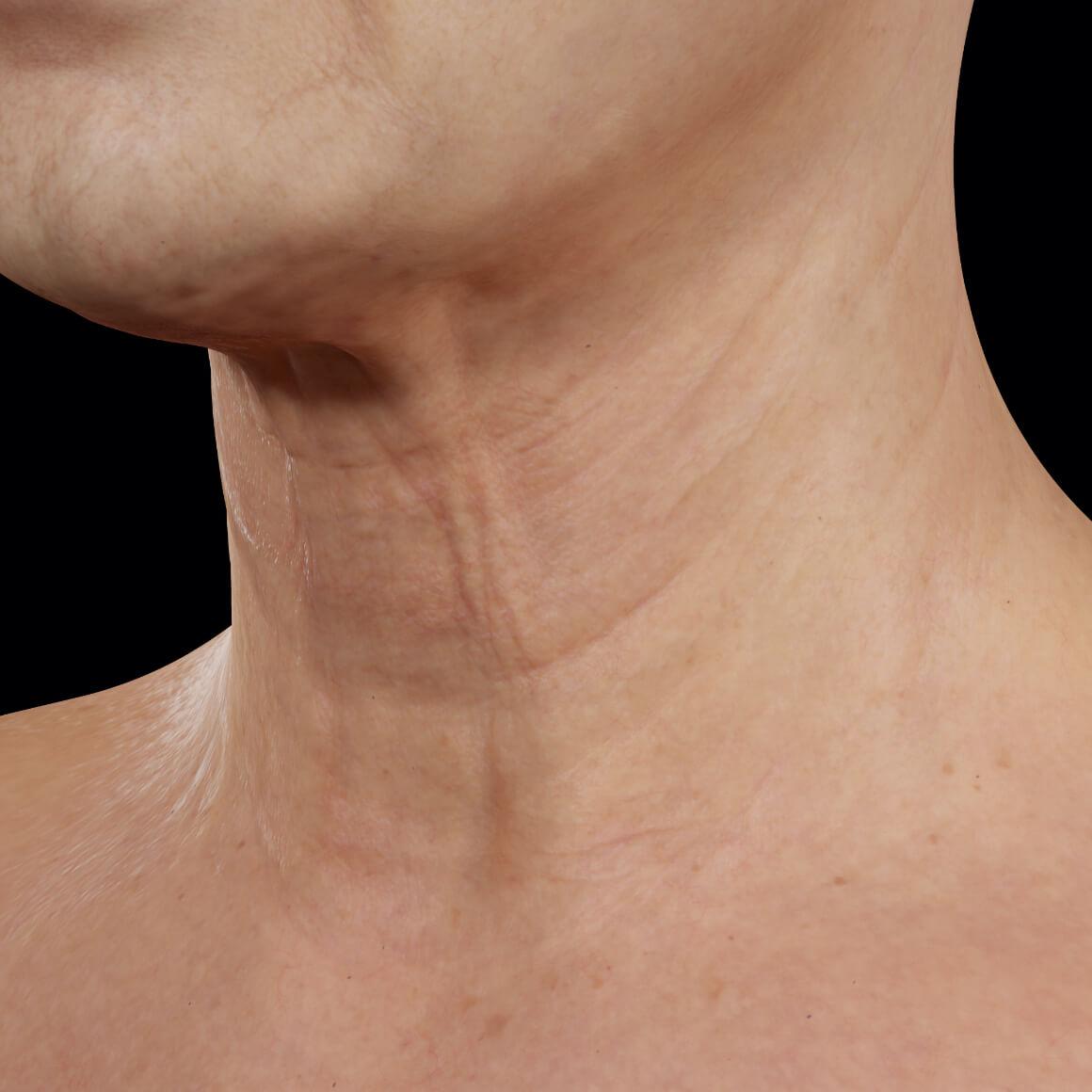 Patiente de la Clinique Chloé vue en angle après des traitements au laser fractionné pour le raffermissement du cou