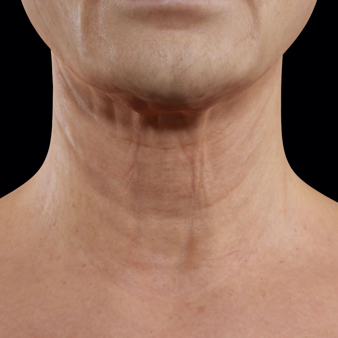 Patiente de la Clinique Chloé vue de face après des traitements au laser fractionné pour le raffermissement du cou