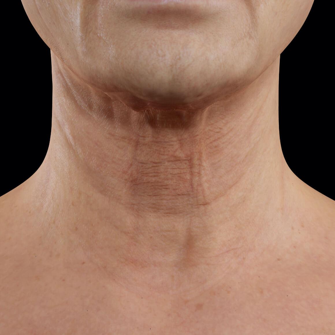 Patiente de la Clinique Chloé vue de face montrant un relâchement cutané du cou