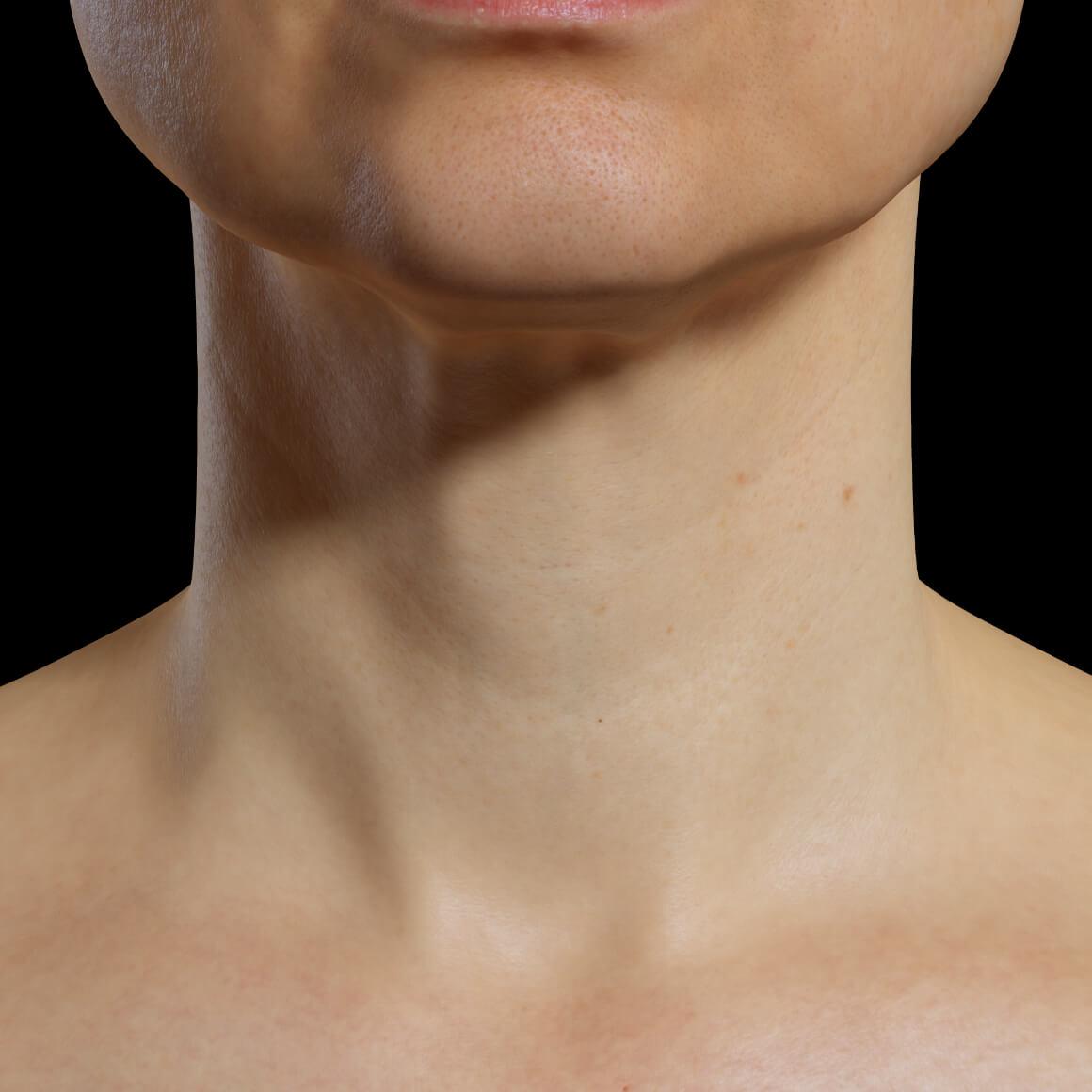Une patiente de la Clinique Chloé de face après des traitements de mésothérapie pour le rajeunissement de l'apparence du cou