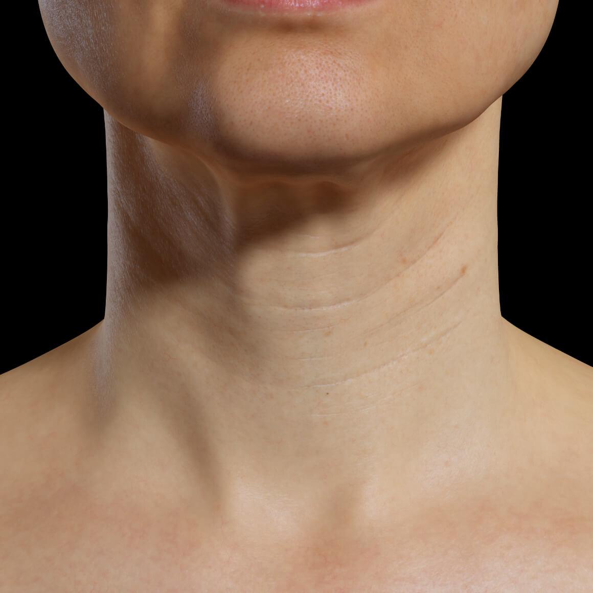 Une patiente de la Clinique Chloé positionnée de face montrant une région du cou ayant des rides