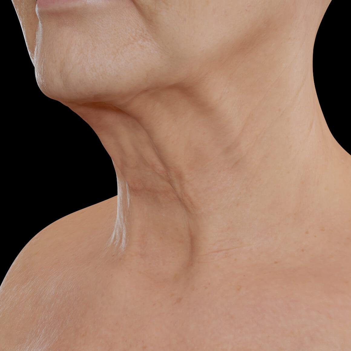 Patiente de la Clinique Chloé positionnée en angle ayant des rides et des cordes platysmales apparentes dans la région du cou