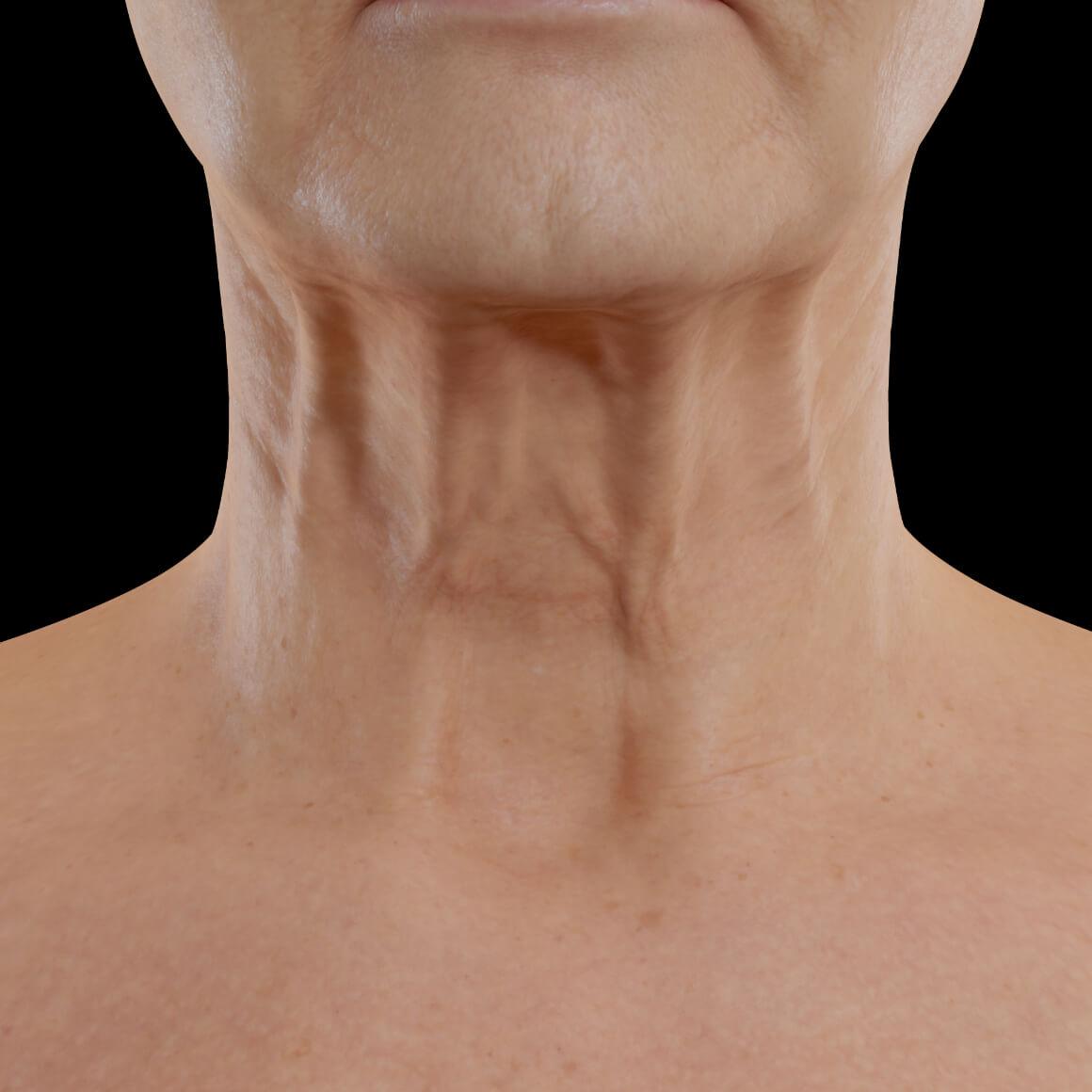 Patiente de la Clinique Chloé positionnée de face ayant des rides et des cordes platysmales apparentes dans la région du cou
