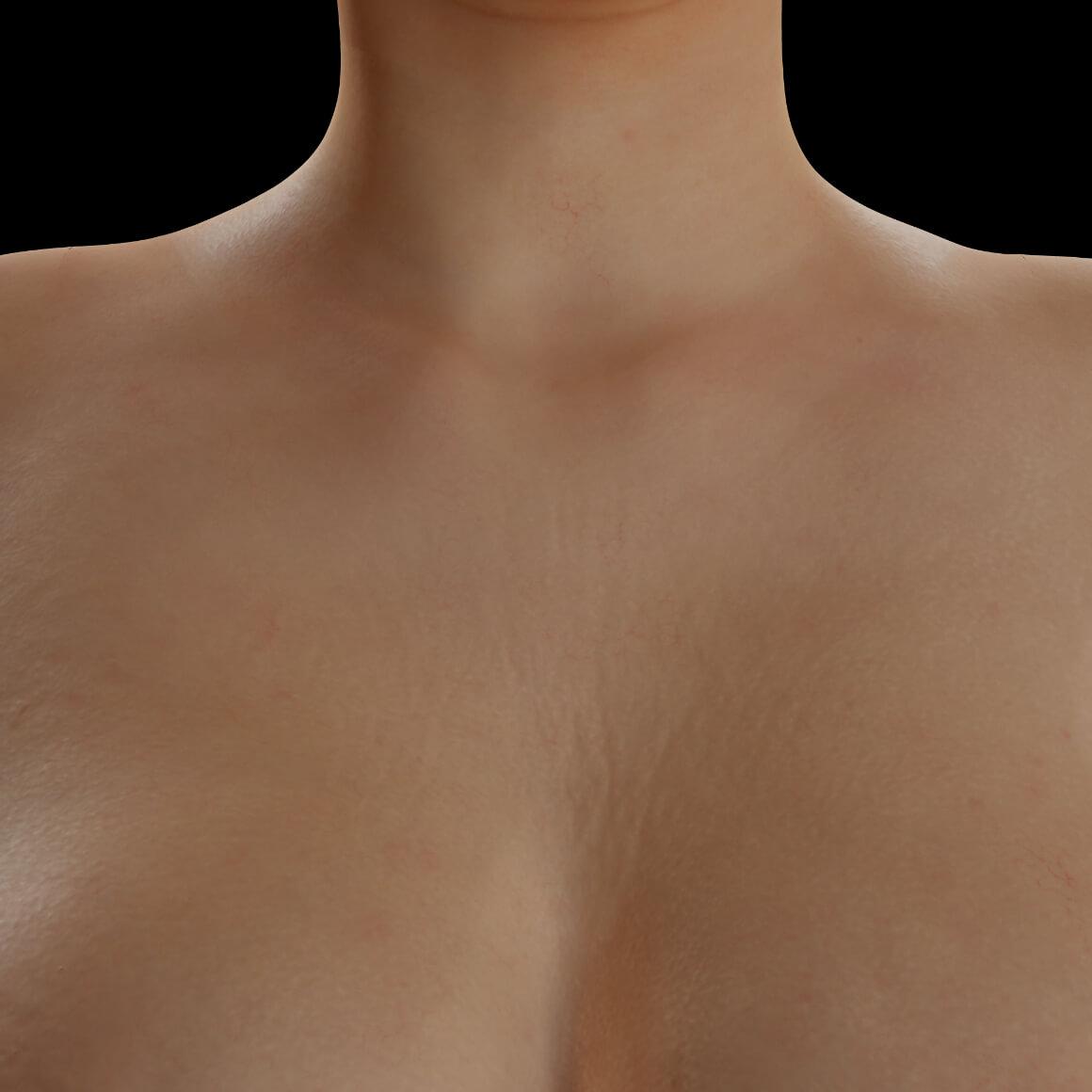 Patiente de la Clinique Chloé positionnée de face après des traitements de PRP pour le raffermissement de la peau du décolleté