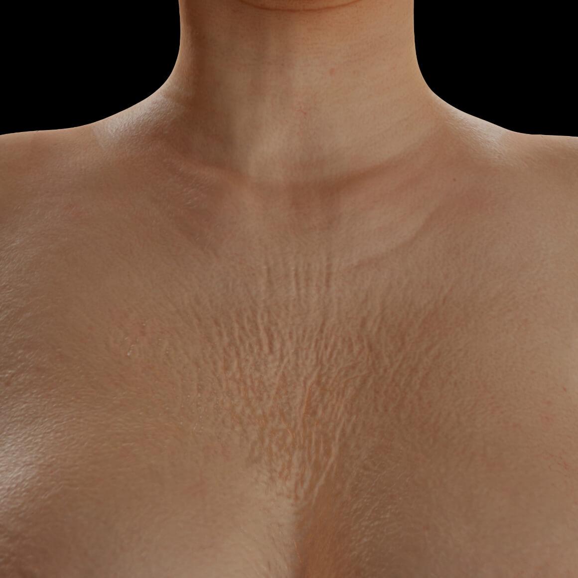 Patiente de la Clinique Chloé positionnée de face ayant du relâchement cutané et des rides sur la peau du décolleté