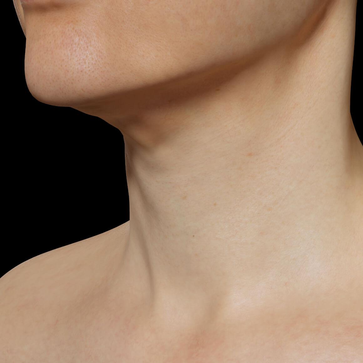Patiente de la Clinique Chloé positionnée en angle après un traitement Profound RF pour le raffermissement de la peau du cou