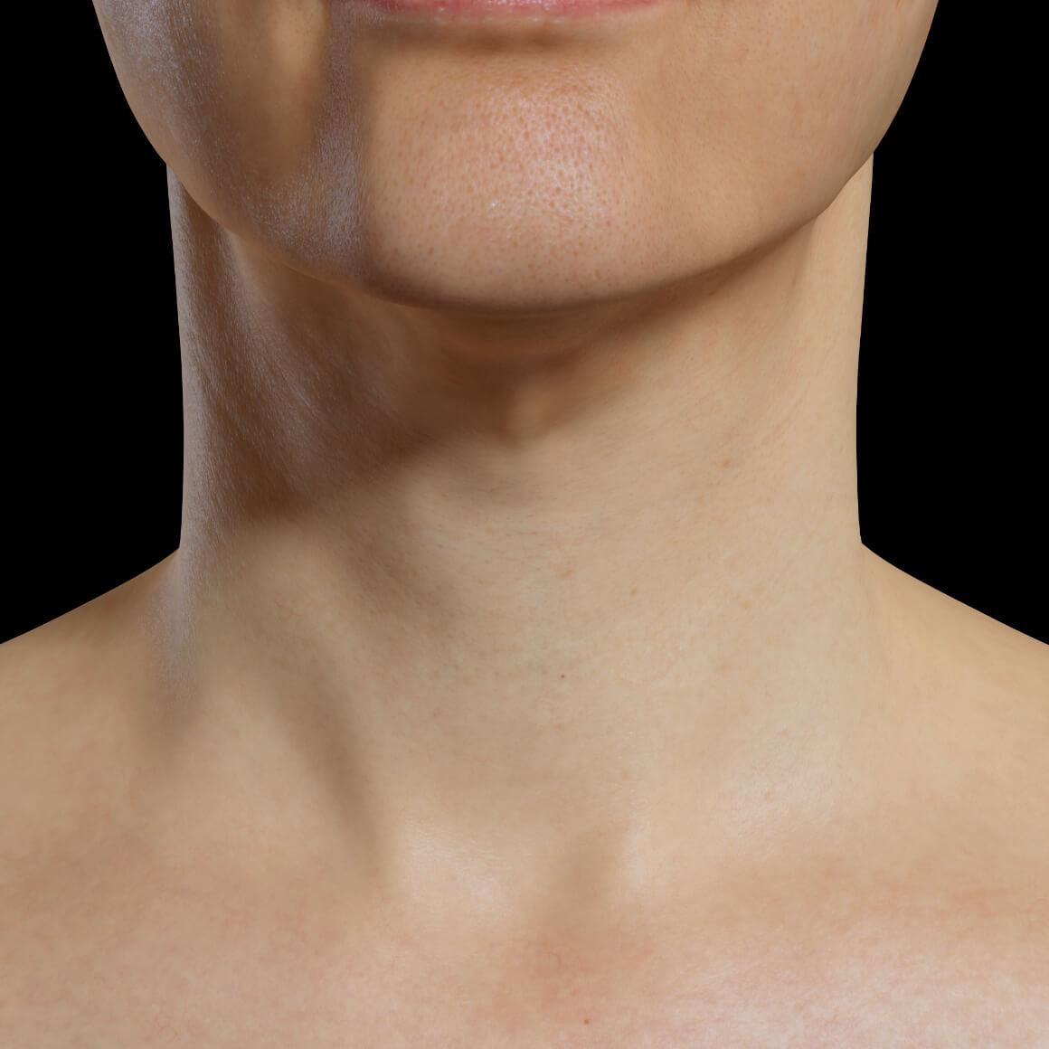 Patiente de la Clinique Chloé positionnée de face après un traitement Profound RF pour le raffermissement de la peau du cou