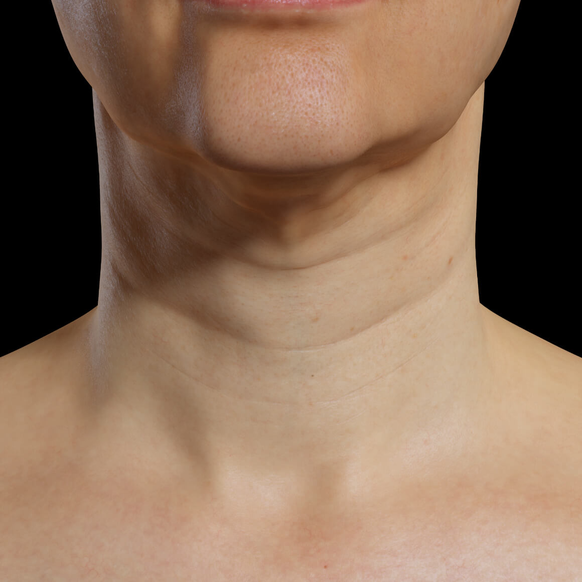 Patiente de la Clinique Chloé positionnée de face ayant des rides et du relâchement cutané au niveau du cou