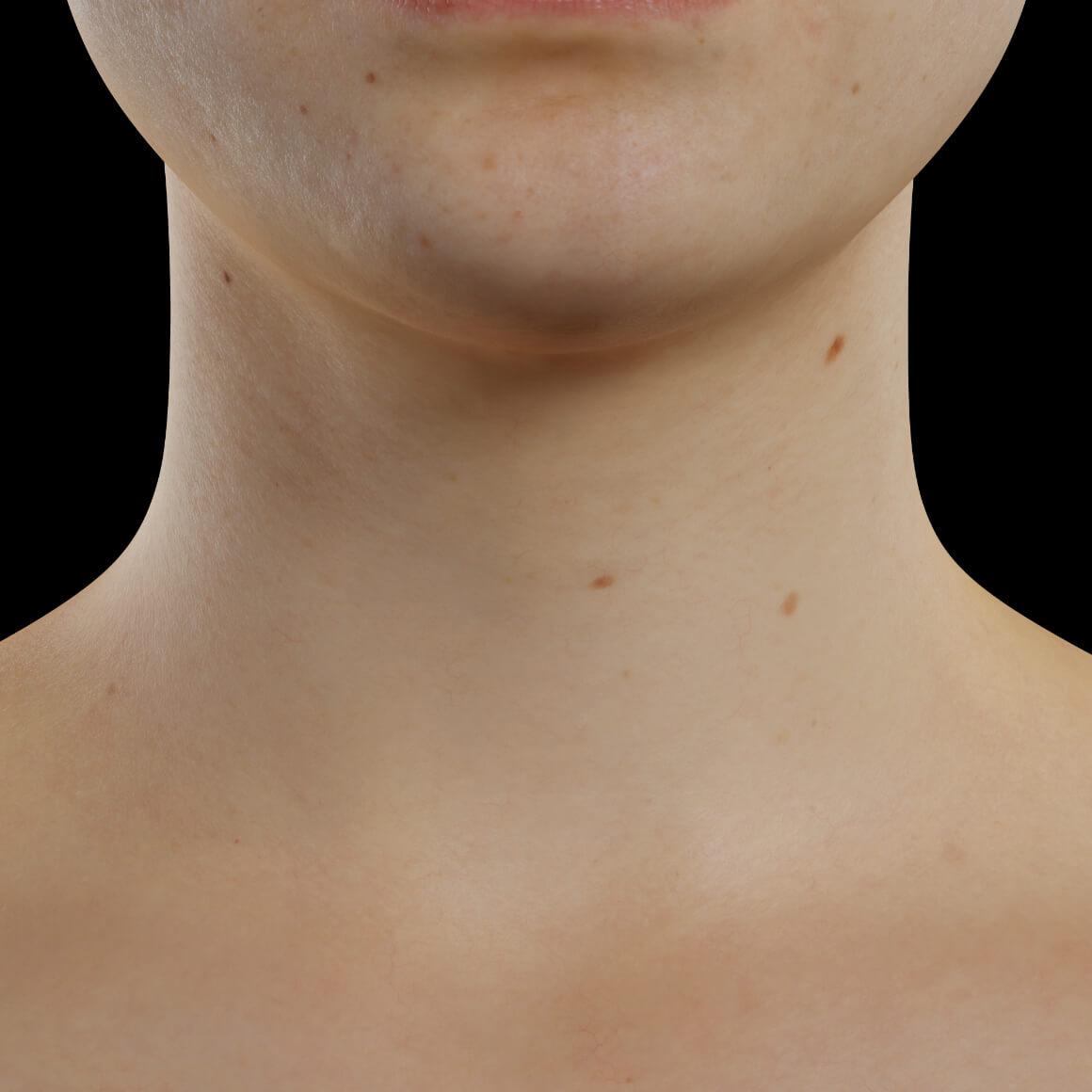 Patiente de la Clinique Chloé positionnée de face après des injections de Skinboosters pour repulper la peau du cou