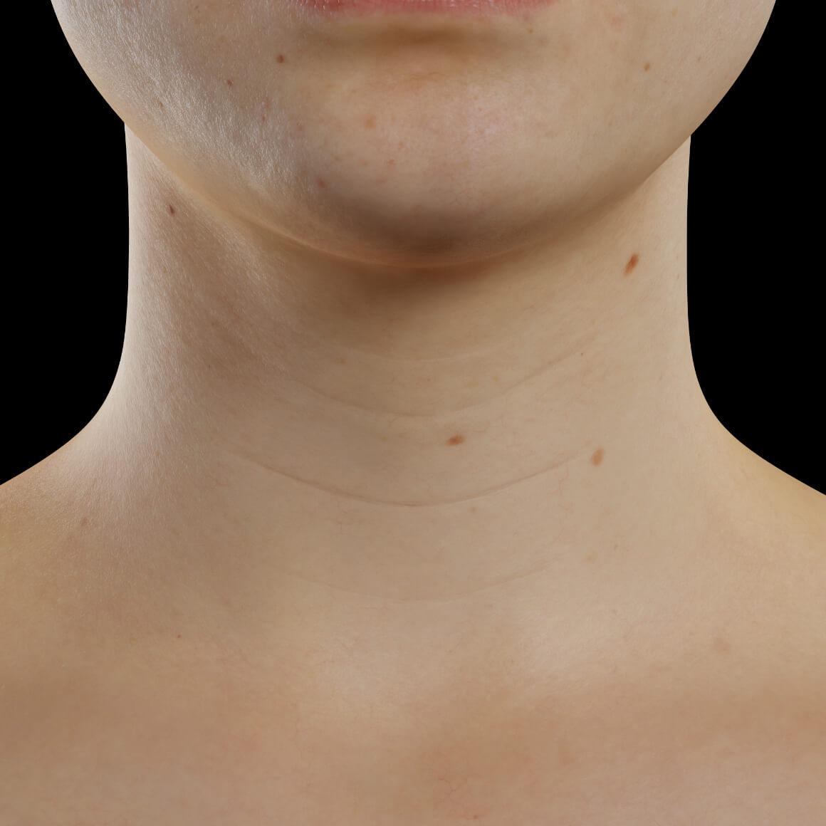 Patiente de la Clinique Chloé positionnée de face démontrant des rides dans le cou