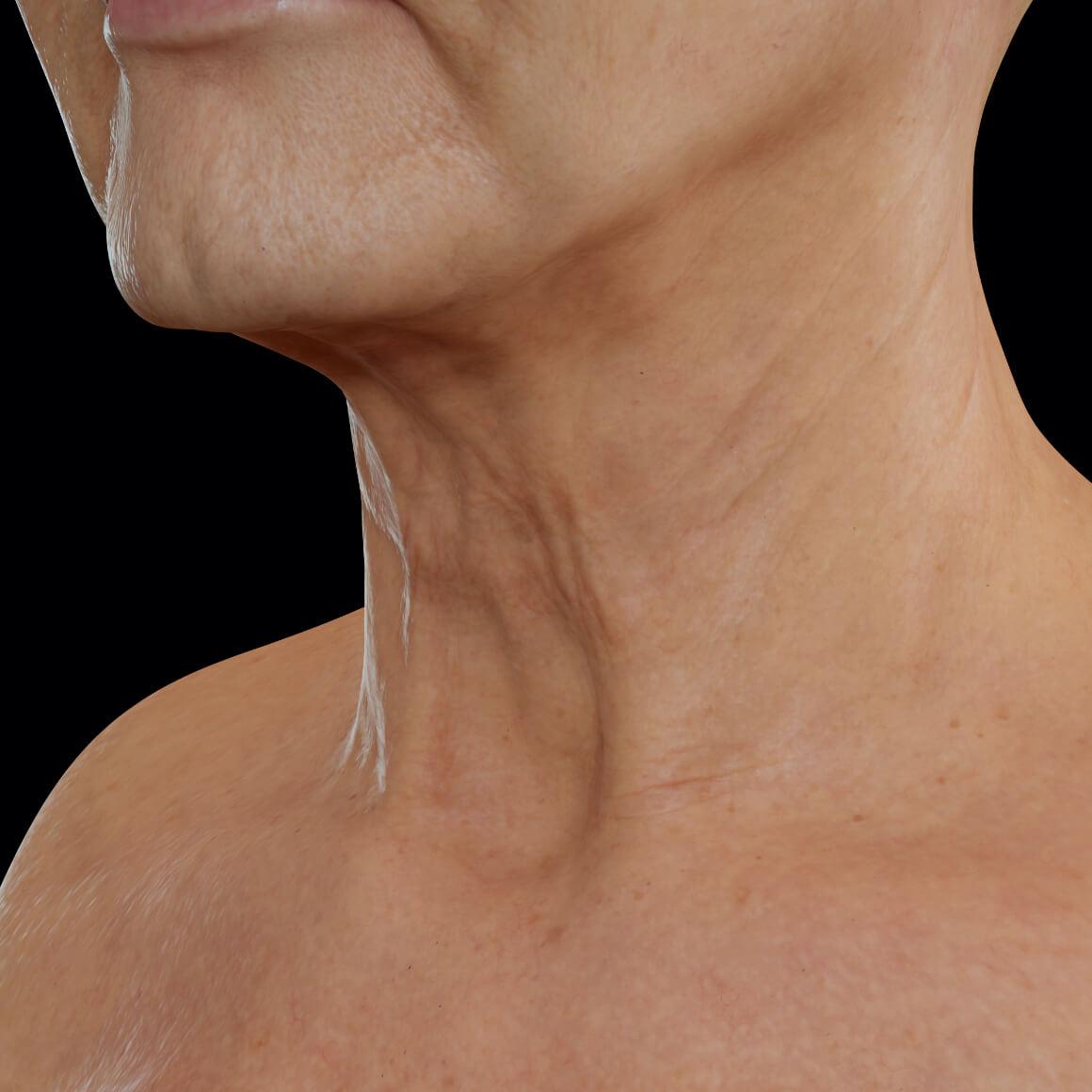 Patiente de la Clinique Chloé vue en angle après des traitements au laser Tight Sculpting pour le raffermissement du cou