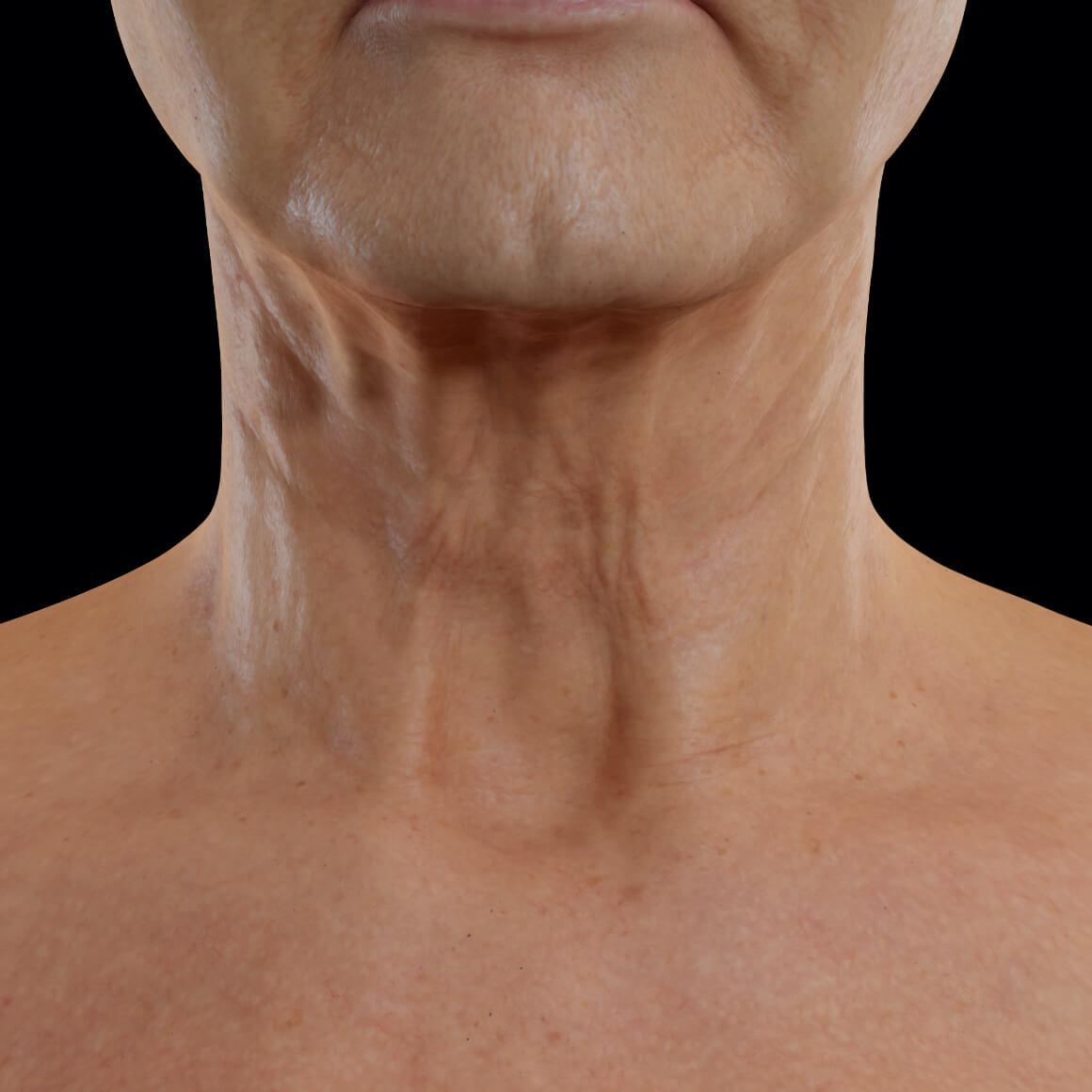Patiente de la Clinique Chloé en vue frontale après des traitements au laser Tight Sculpting pour le raffermissement du cou