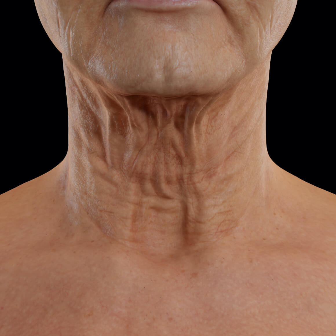 Patiente de la Clinique Chloé positionnée de face montrant un relâchement cutané au niveau du cou