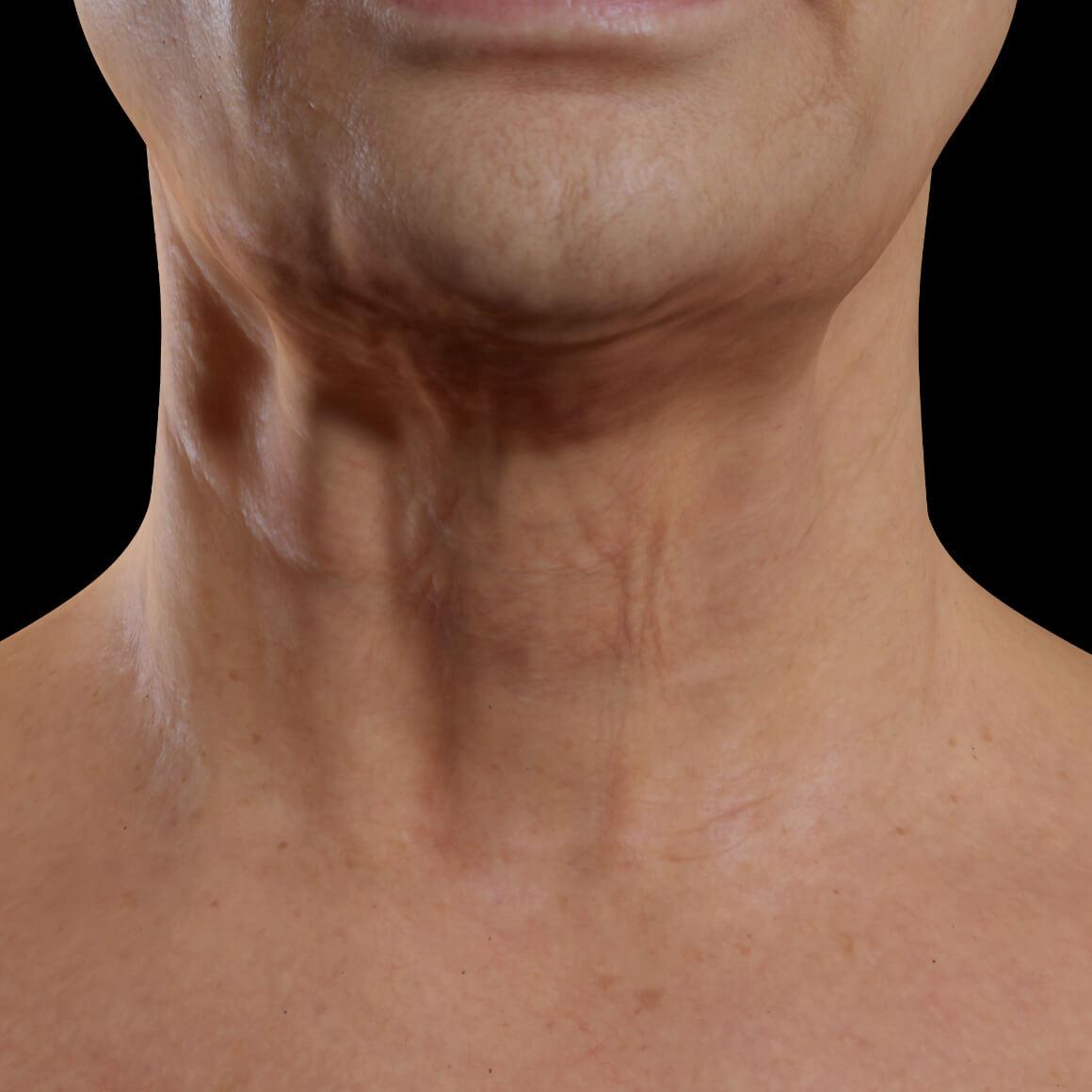 Patiente de la Clinique Chloé vue de face après des traitements de Venus Legacy pour le raffermissement du cou
