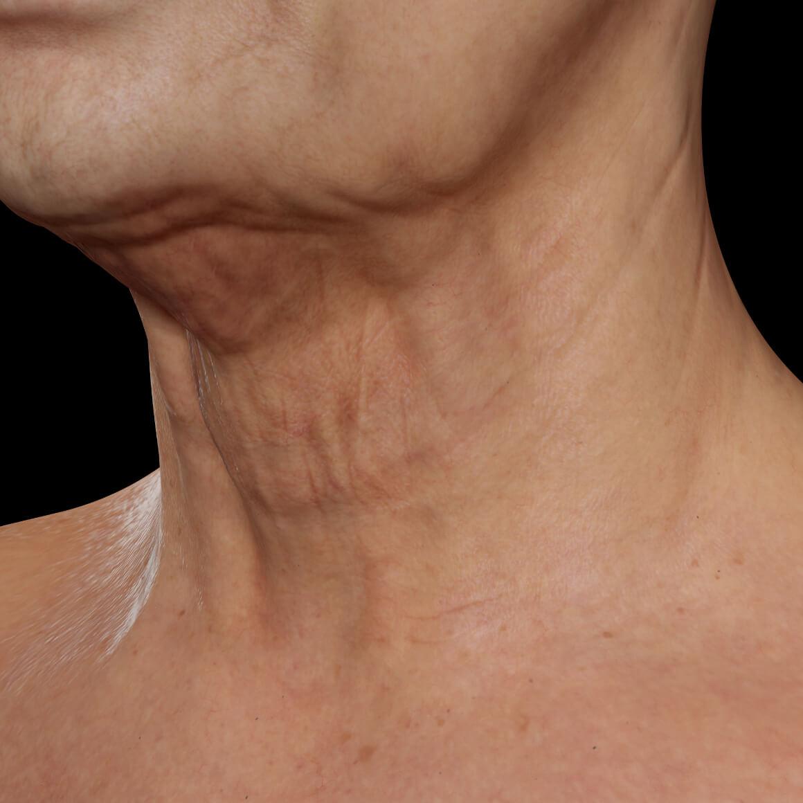 Patiente de la Clinique Chloé vue en angle aux prises avec un relâchement cutané du cou