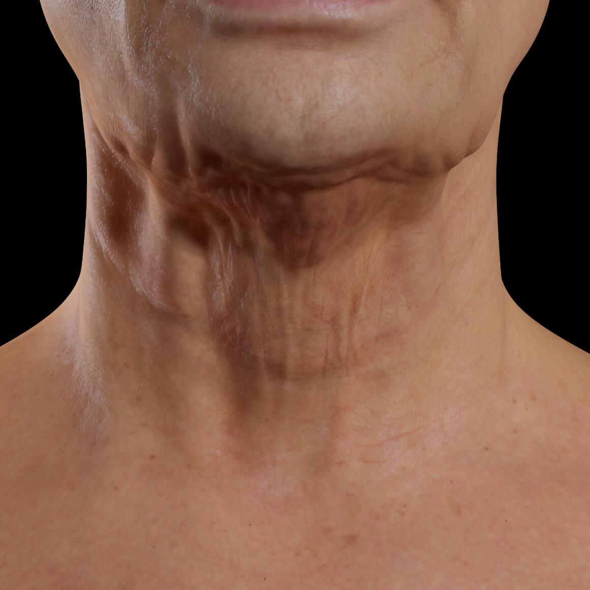 Patiente de la Clinique Chloé vue de face aux prises avec un relâchement cutané du cou