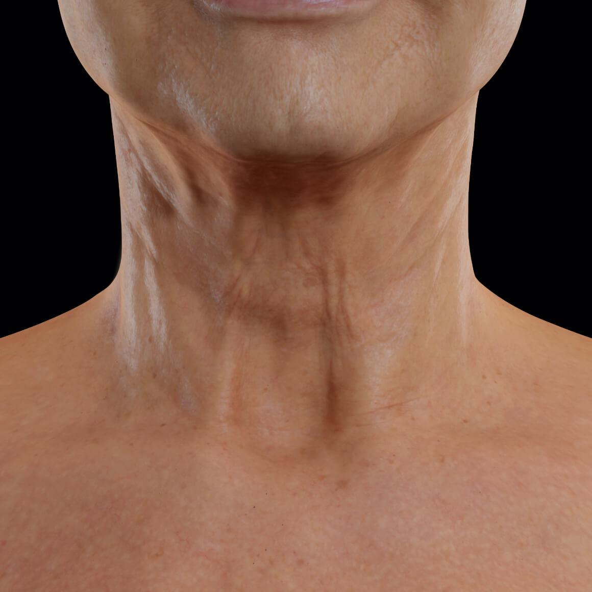 Patiente de la Clinique Chloé vue de face après des traitements Venus Viva pour le raffermissement de la peau du cou