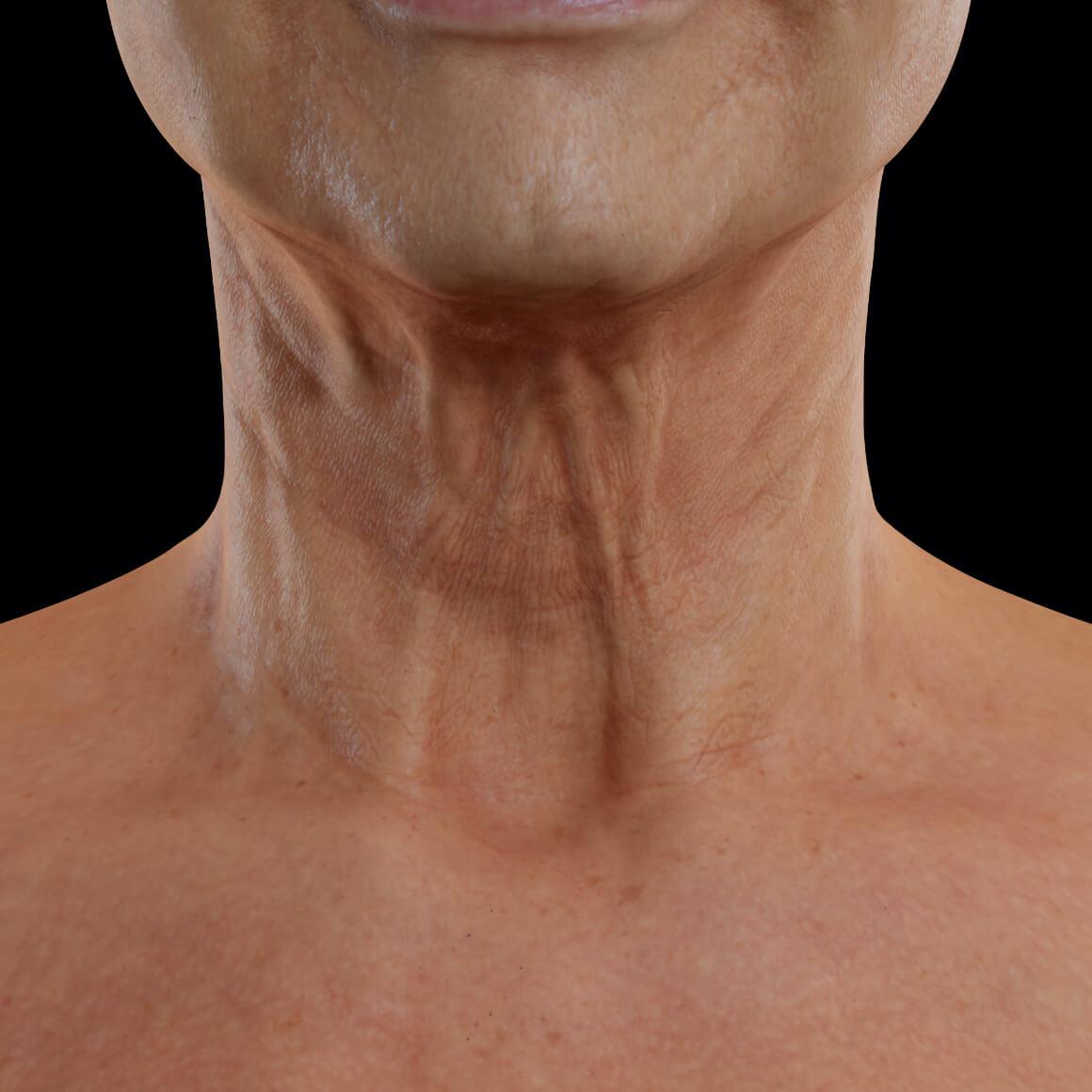 Patiente de la Clinique Chloé vue de face montrant un relâchement de la peau du cou