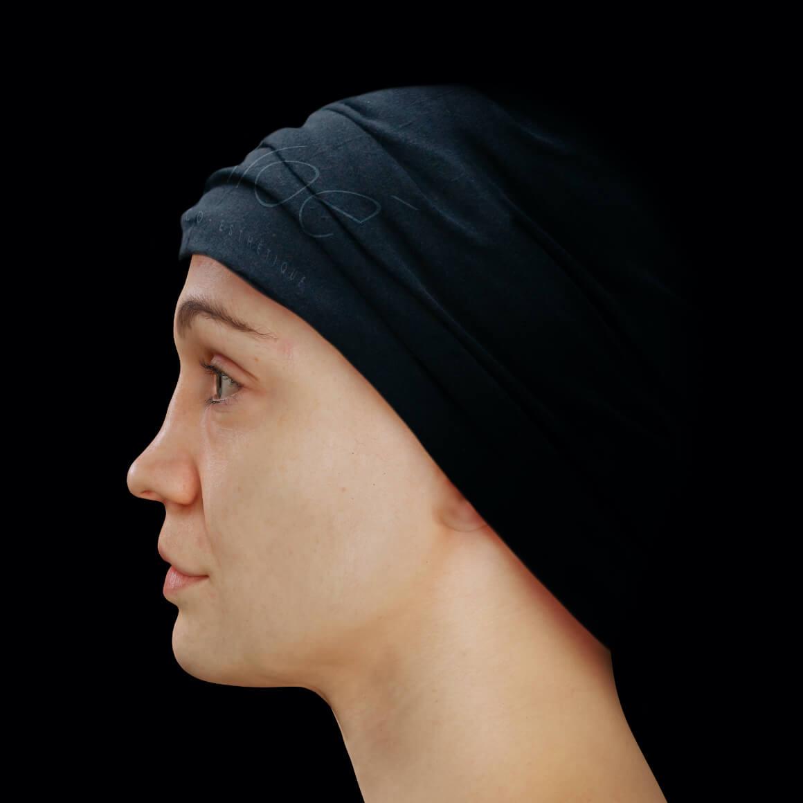 Patiente de la Clinique Chloé de côté après un traitement d'injections d'agents de comblement pour le tonus du visage