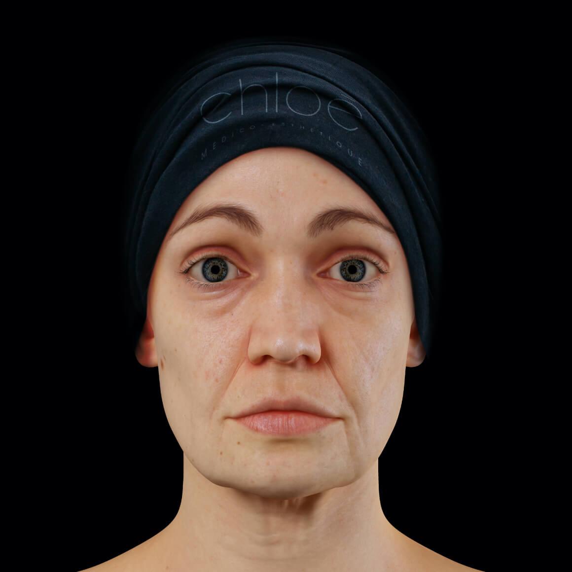 Patiente de la Clinique Chloé positionnée de face montrant un relâchement du tonus du visage