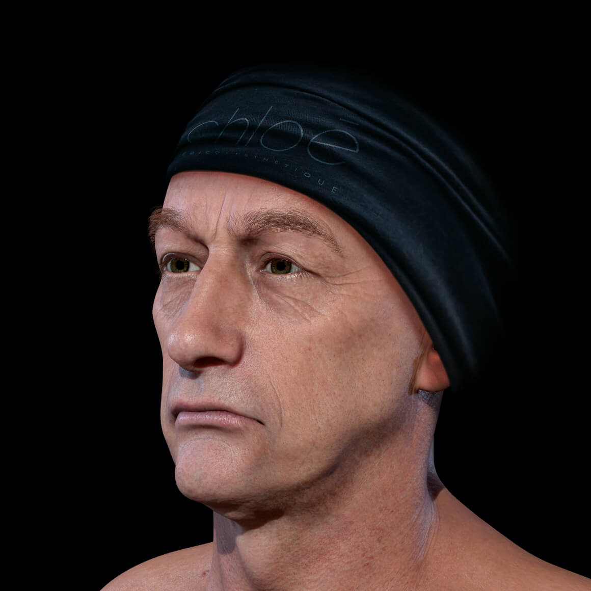 Patient de la Clinique Chloé positionné en angle après des traitements au laser Fotona 4D pour le raffermissement du visage