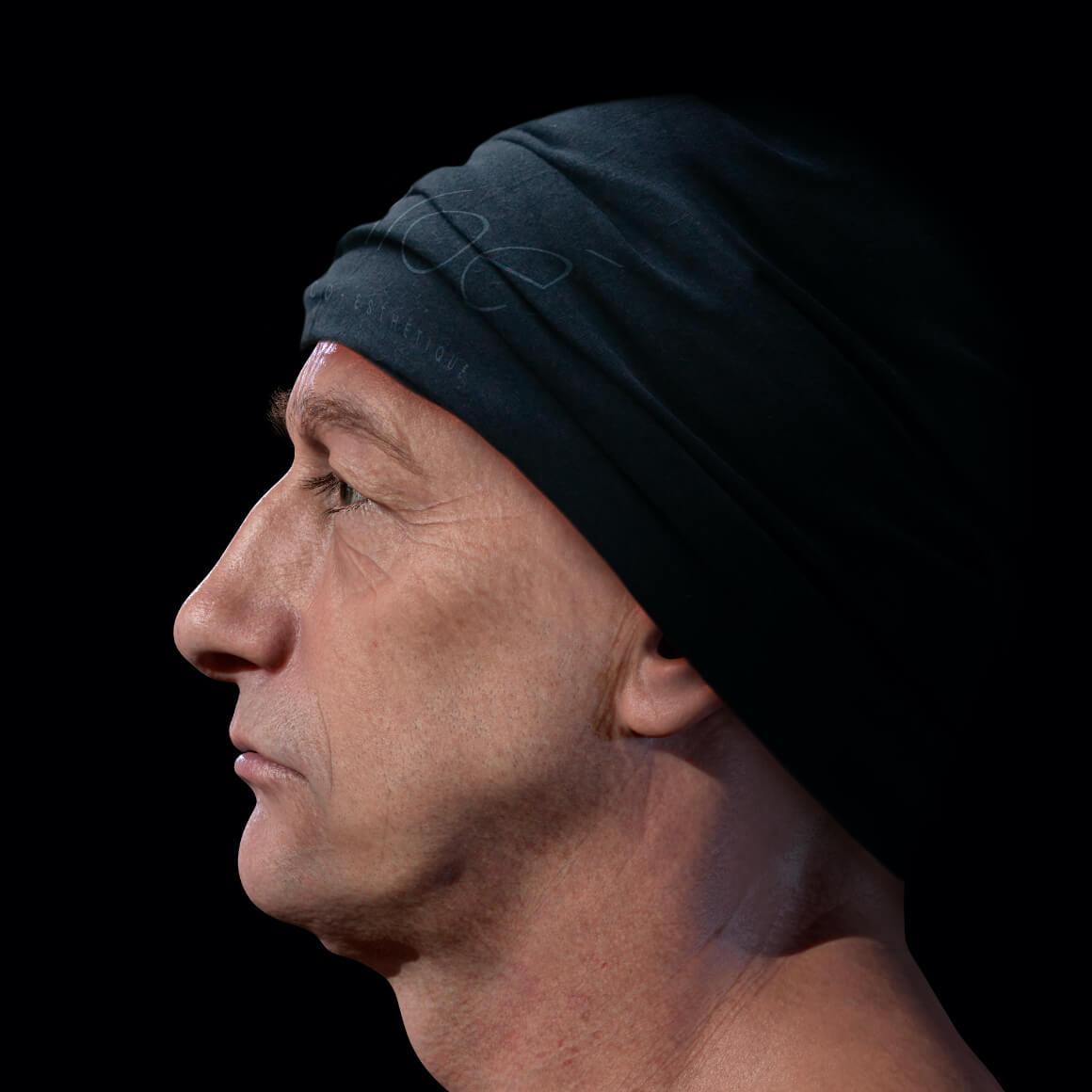 Patient de la Clinique Chloé positionné de côté après des traitements au laser Fotona 4D pour le raffermissement du visage