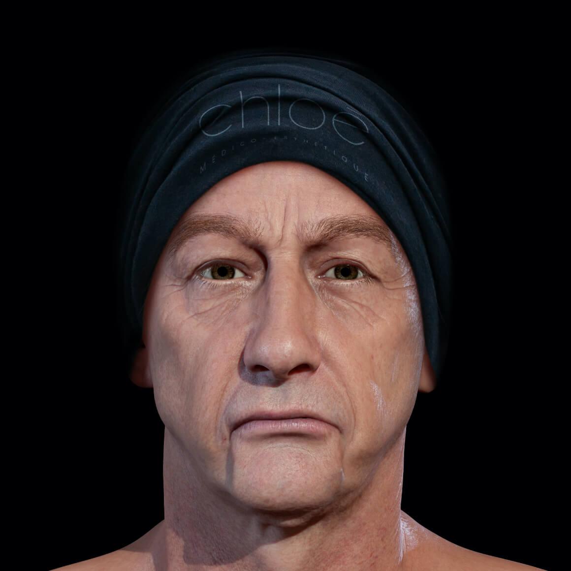 Patient de la Clinique Chloé positionné de face démontrant une perte de tonus du visage