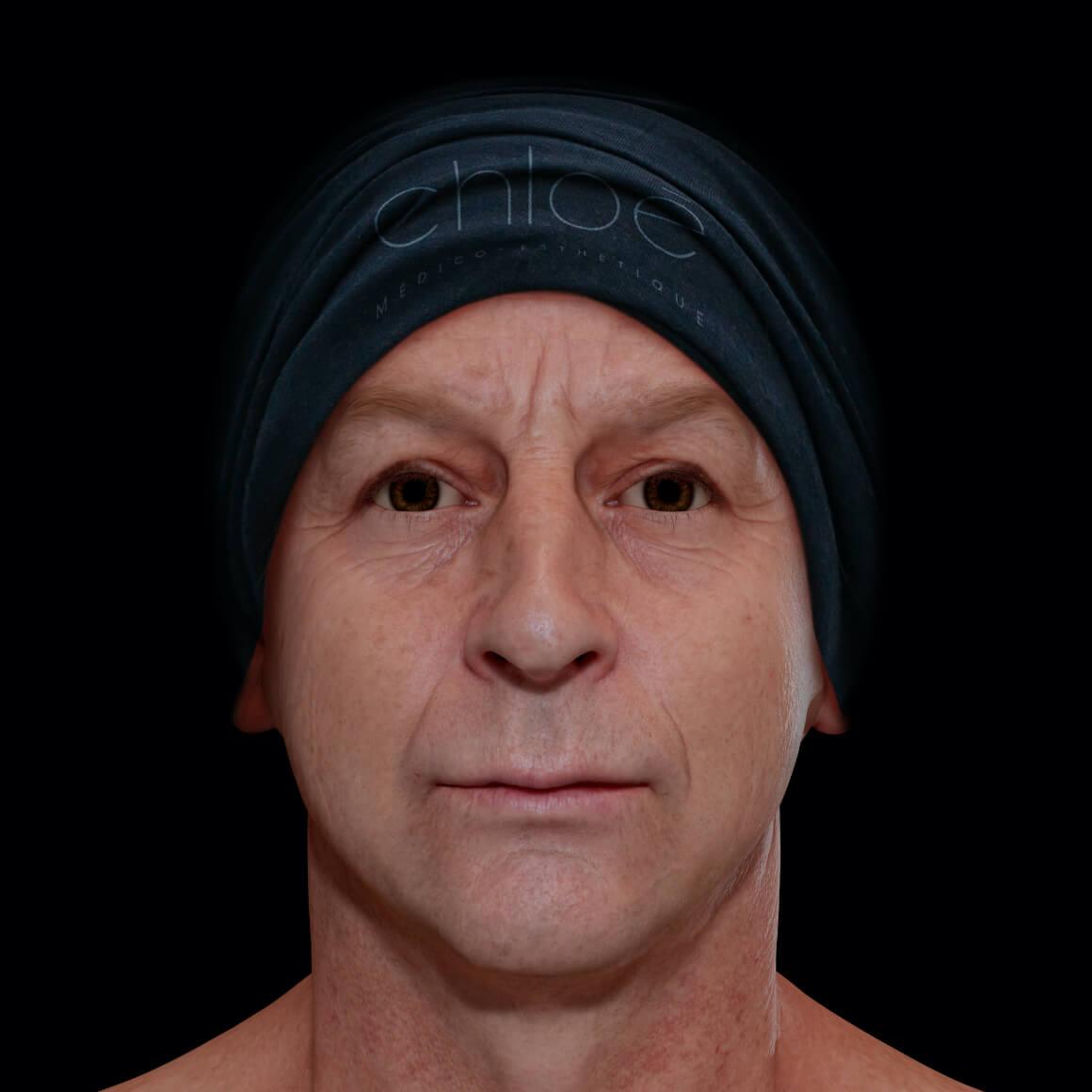 Patient de la Clinique Chloé vu de face après des traitements au laser fractionné pour le relâchement cutané du visage