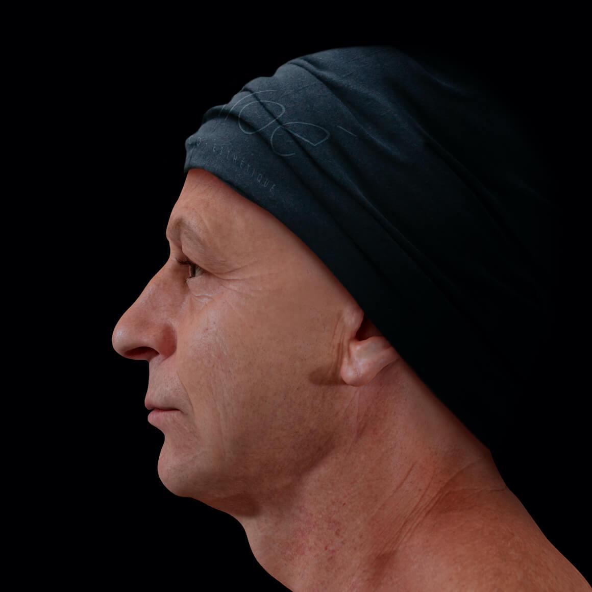 Patient de la Clinique Chloé vu de côté après des traitements au laser fractionné pour le relâchement cutané du visage