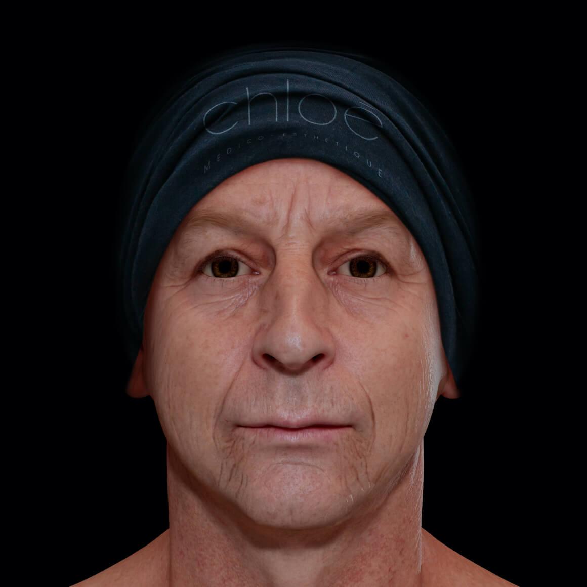 Patient de la Clinique Chloé positionné de face montrant un relâchement cutané du visage