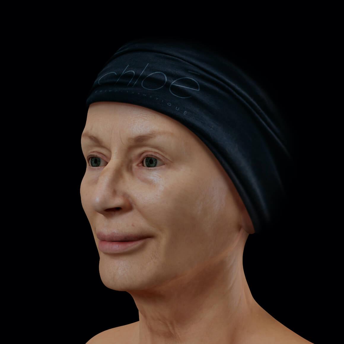 Patiente de la Clinique Chloé positionnée en angle après un traitement de raffermissement du visage Profound