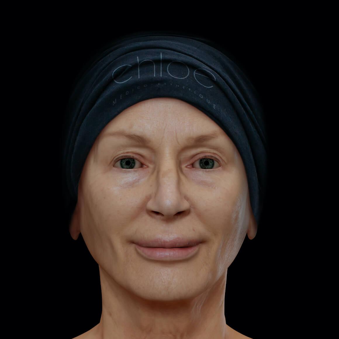 Patiente de la Clinique Chloé positionnée de face après un traitement de raffermissement du visage Profound