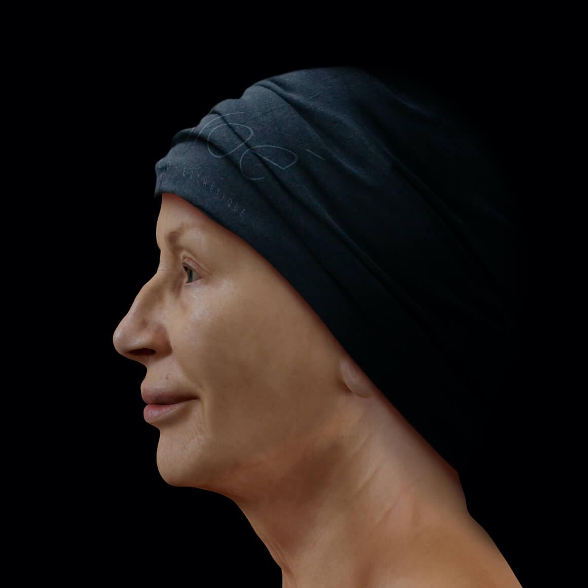 Patiente de la Clinique Chloé positionnée de côté après un traitement de raffermissement du visage Profound
