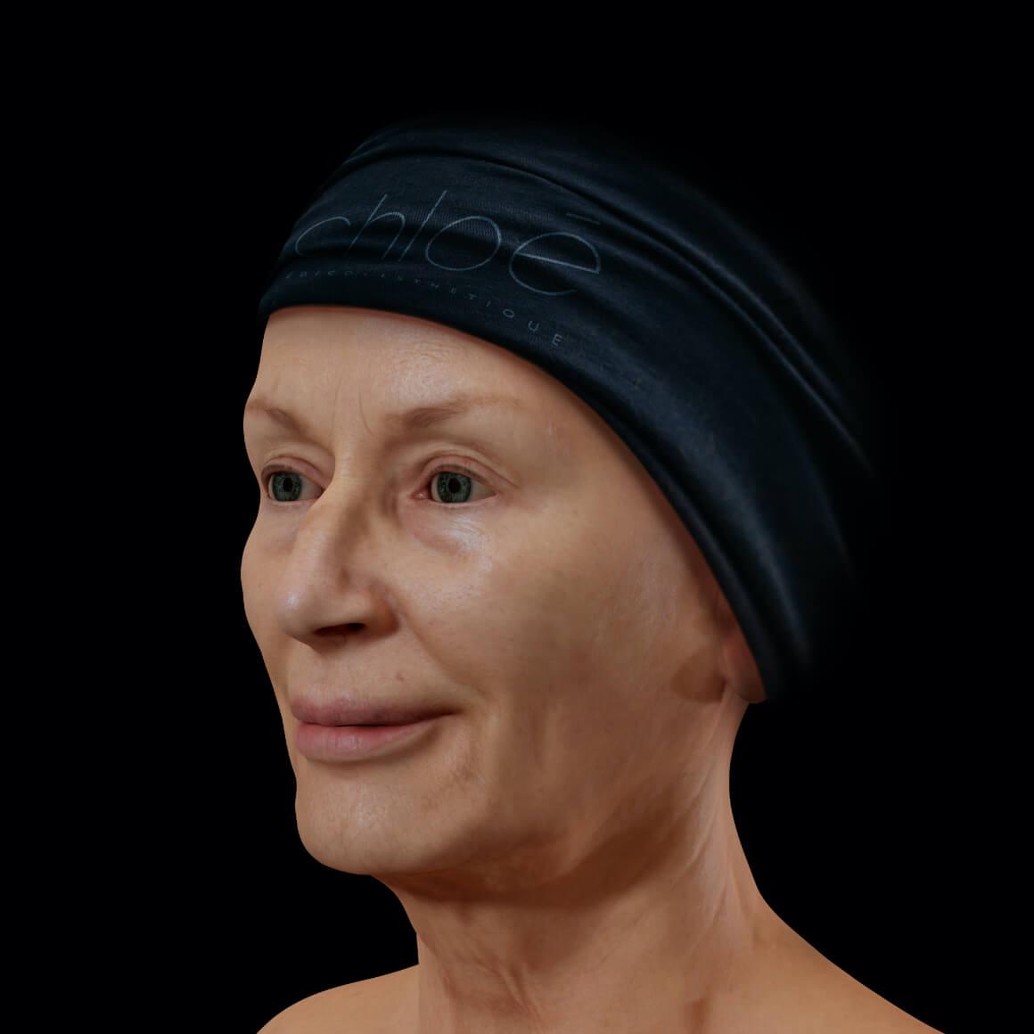 Patiente de la Clinique Chloé positionnée en angle montrant une perte de tonus du visage