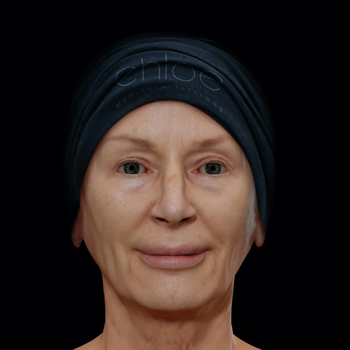 Patiente de la Clinique Chloé positionnée de face montrant une perte de tonus du visage