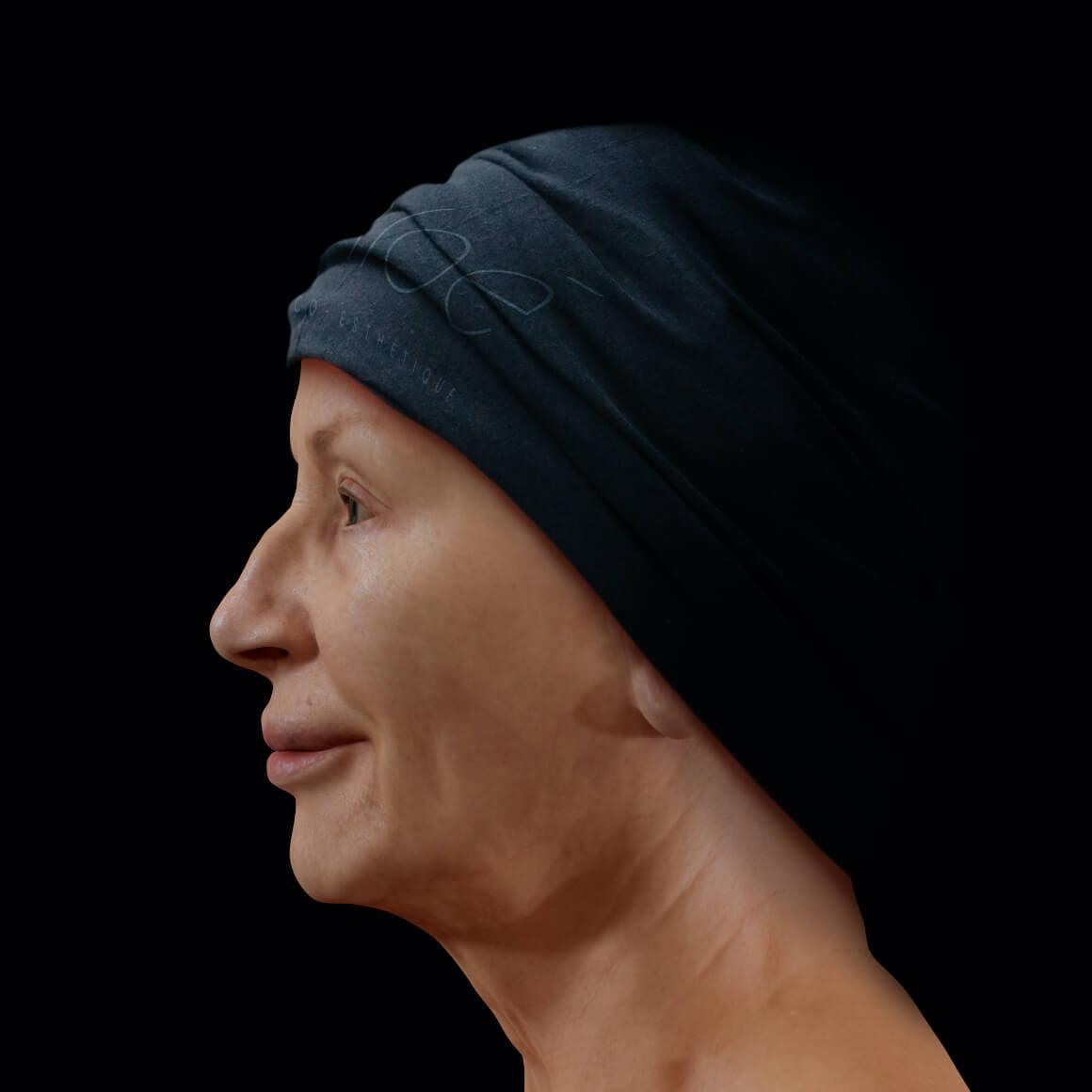 Patiente de la Clinique Chloé positionnée de côté montrant une perte de tonus du visage