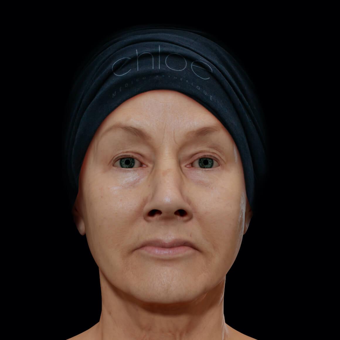 Femme patiente à la Clinique Chloé vue de face après des traitements laser Smoothliftin pour le raffermissement du visage