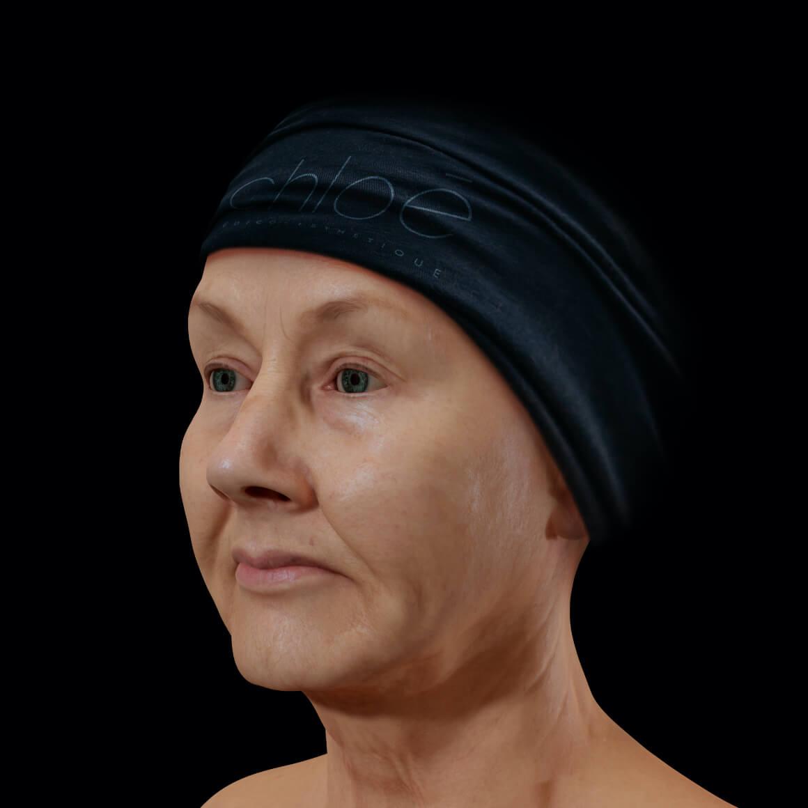 Femme patiente à la Clinique Chloé vue en angle démontrant un relâchement cutané du visage