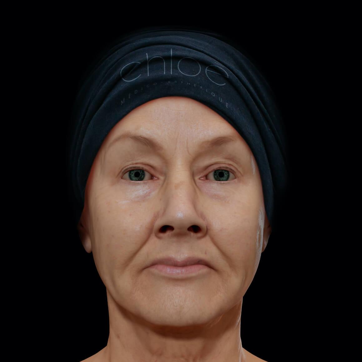 Femme patiente à la Clinique Chloé vue de face démontrant un relâchement cutané du visage