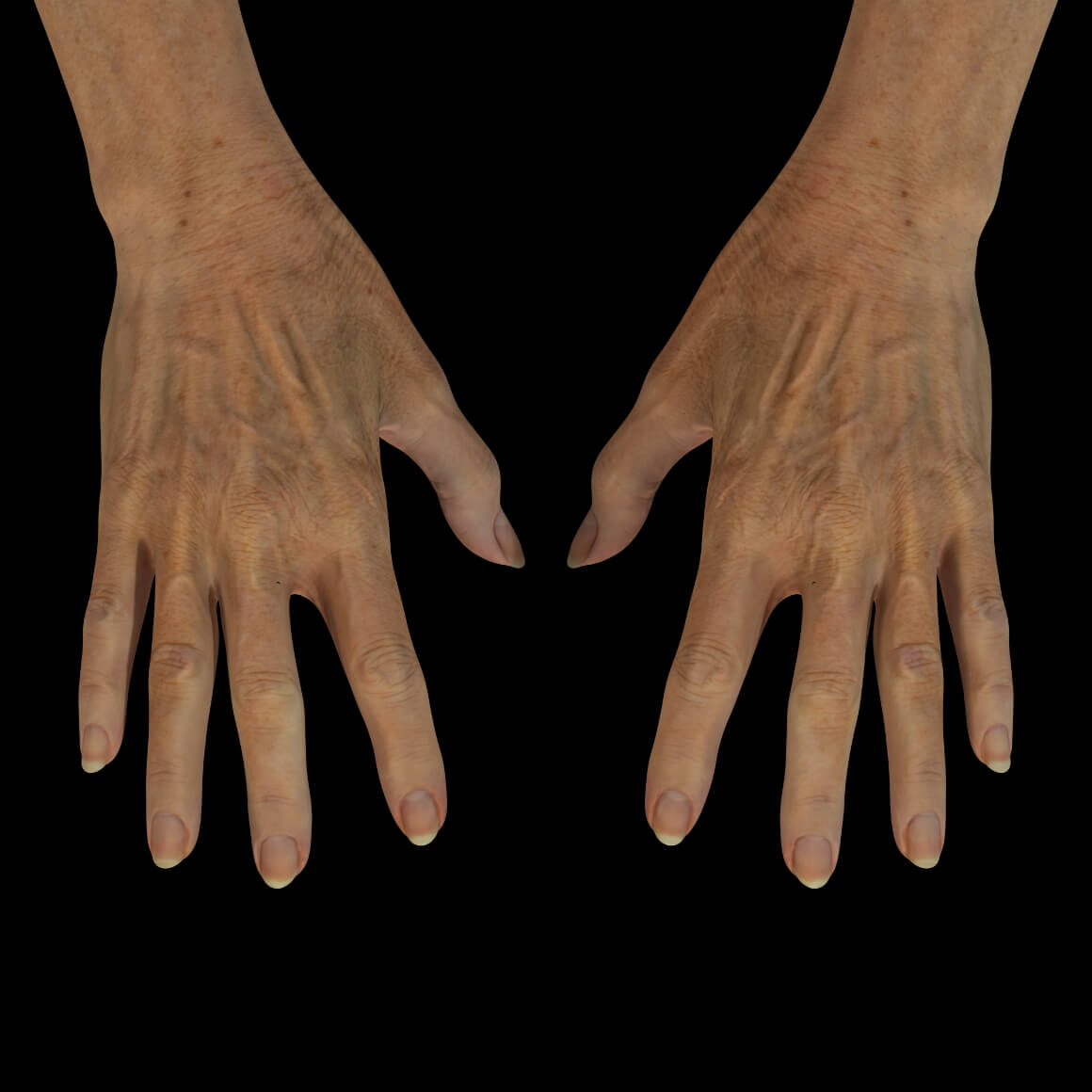 Hands of a Clinique Chloé female patient showing pigmented lesions, wrinkles and prominent tendons