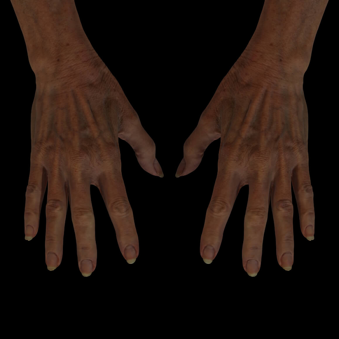 A Clinique Chloé female patient's hands showing pigmented lesions, wrinkles and prominent tendons