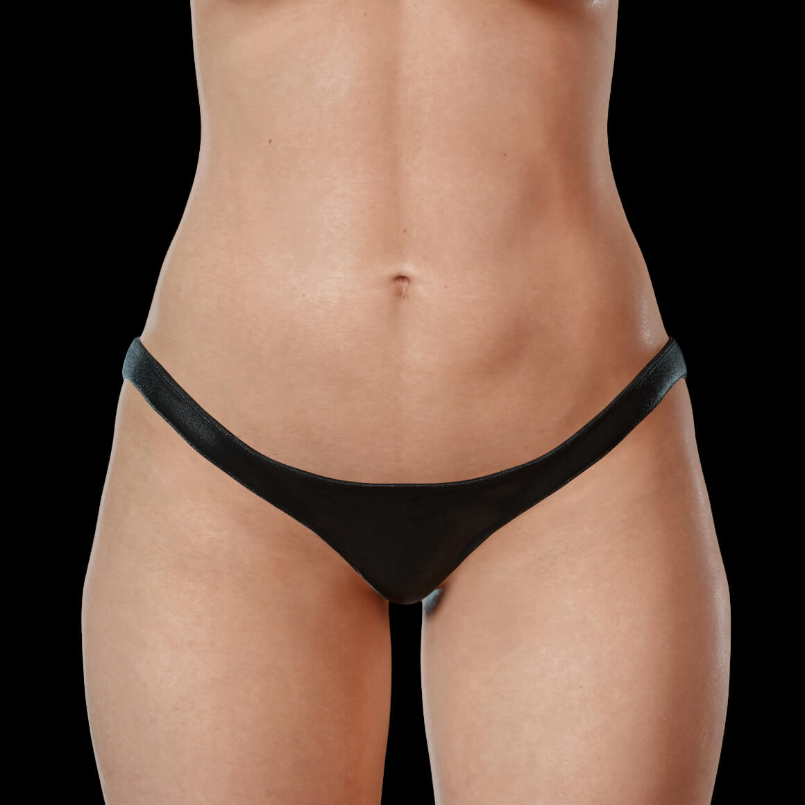 A female patient from Clinique Chloé facing front after a Hot Sculpting laser treatment for fat reduction