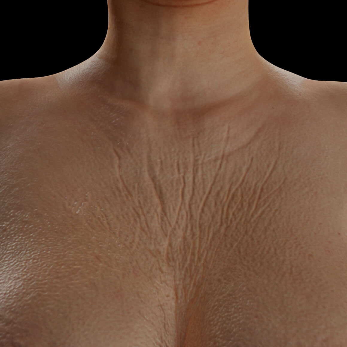 Female patient from Clinique Chloé showing body skin laxity in the décolleté region