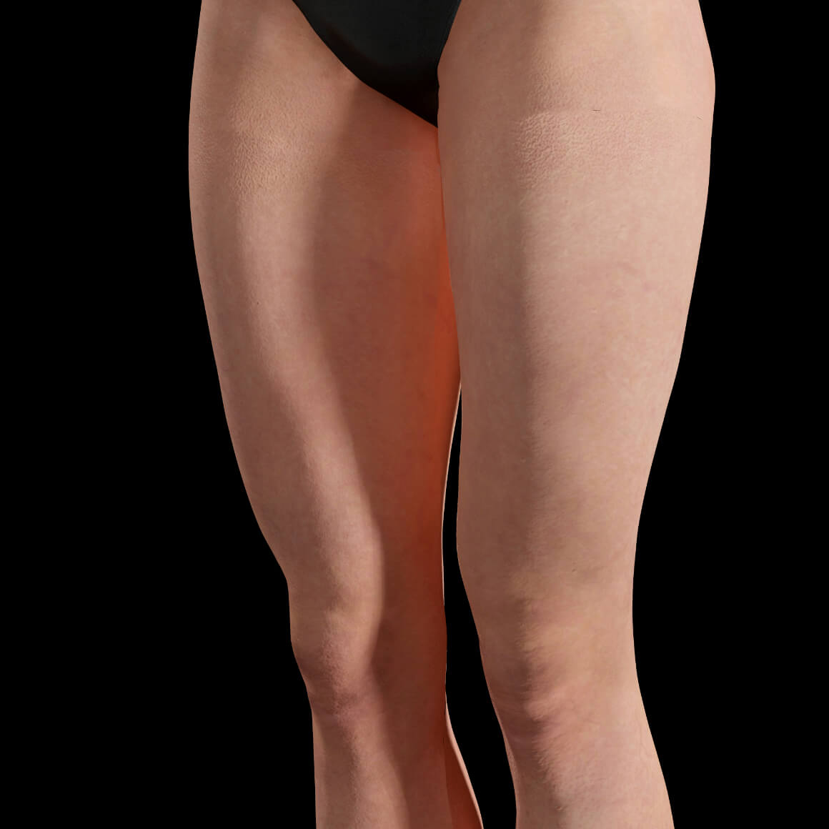 Angled Clinique Chloé female patient after Sculptra injections on the thighs for body skin tightening