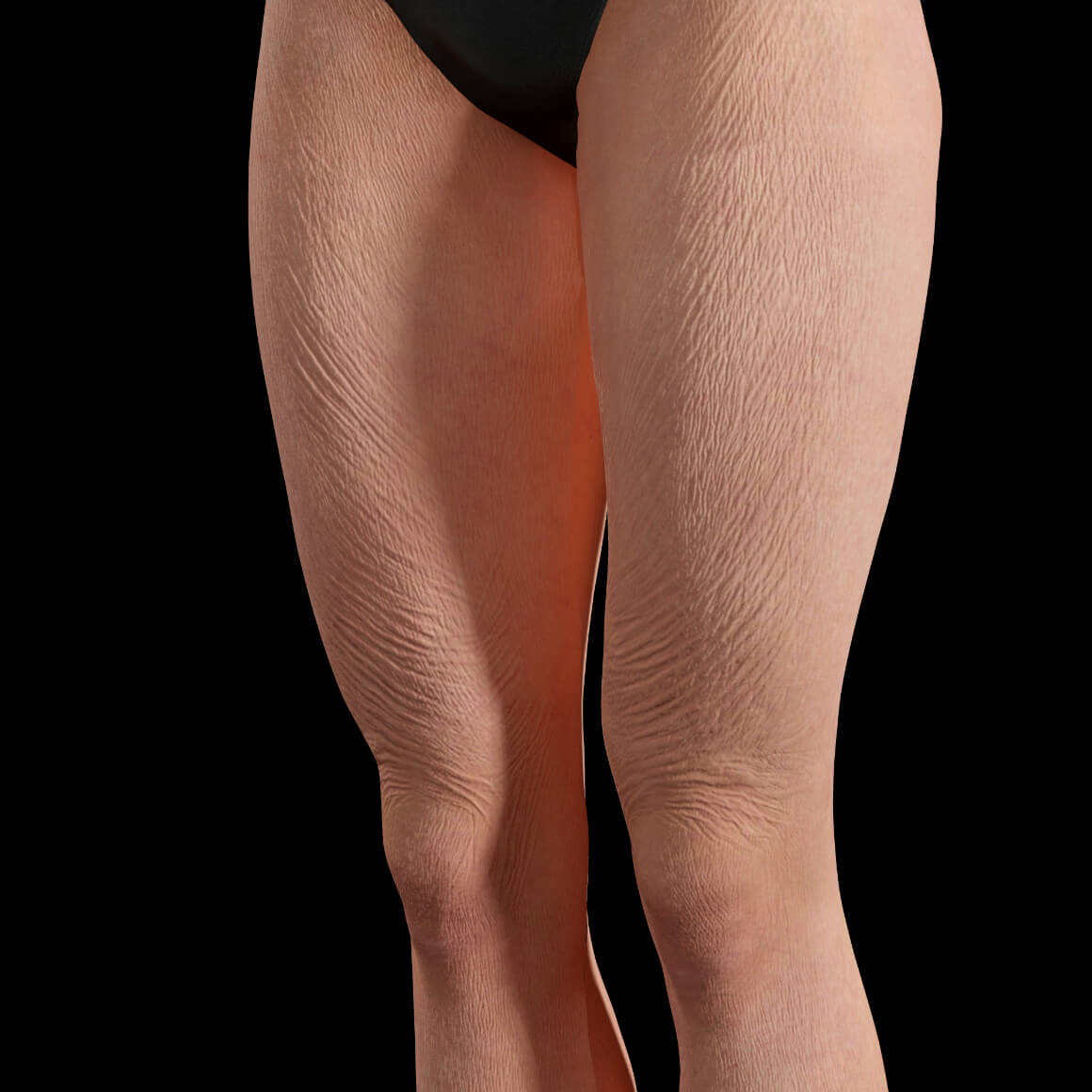 Angled Clinique Chloé female patient showing body skin laxity on her thighs