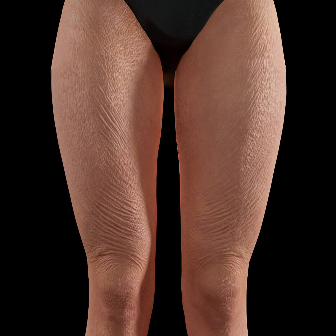 Anterior thighs of a Clinique Chloé female patient showing body skin laxity