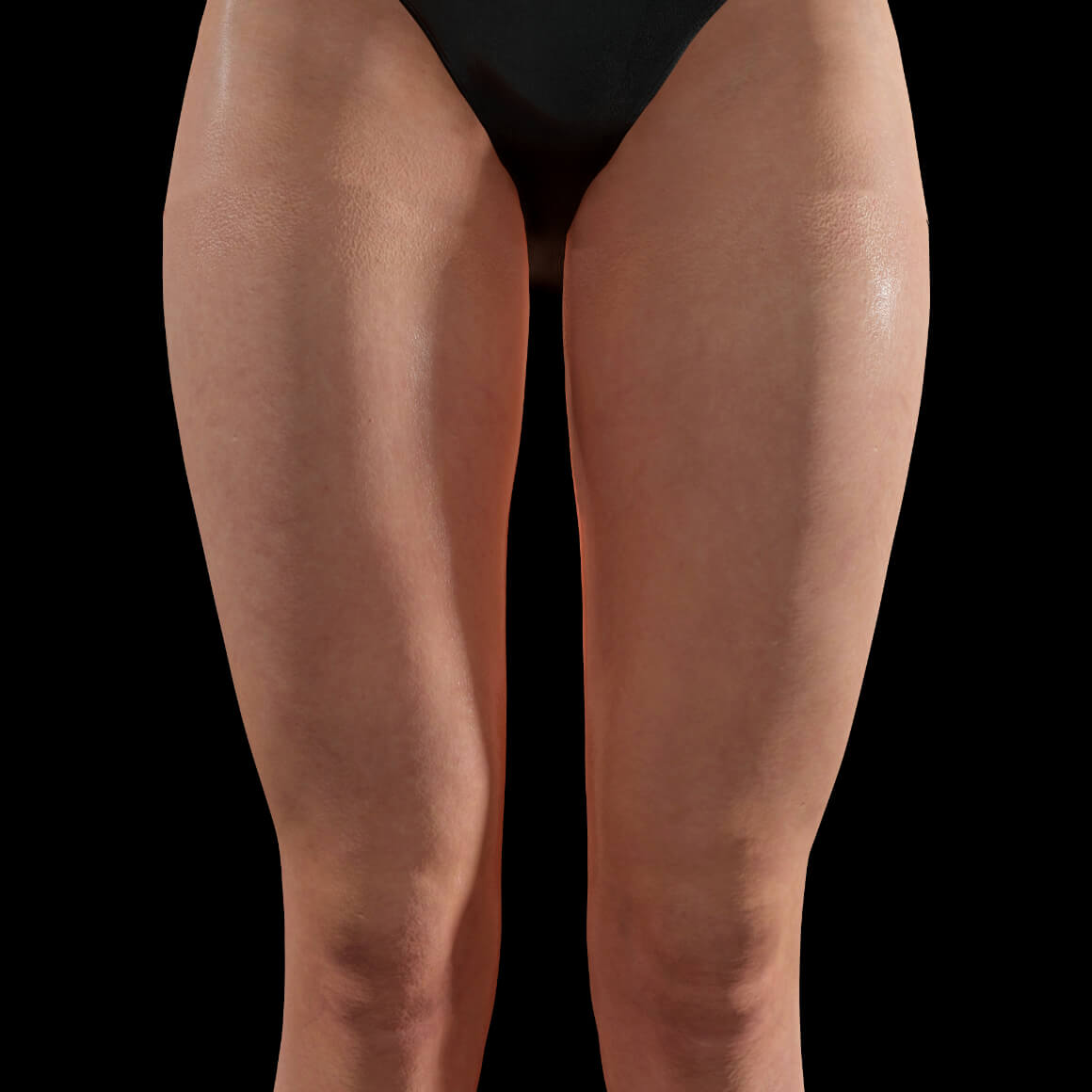 Anterior thighs of a Clinique Chloé female patient after Sculptra injections for body skin tightening