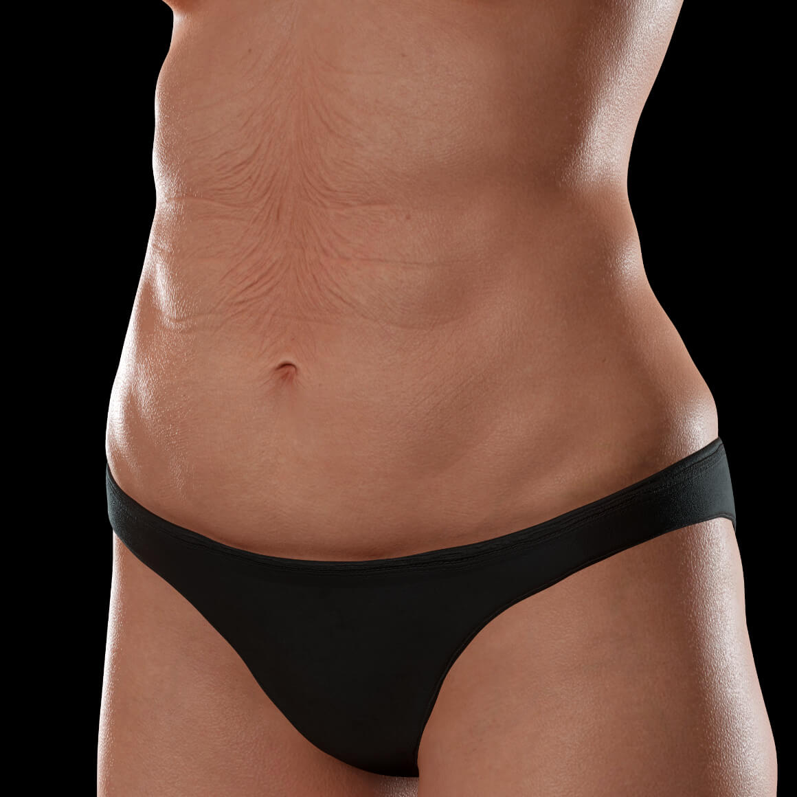 Angled Clinique Chloé female patient showing body skin laxity on her abdomen